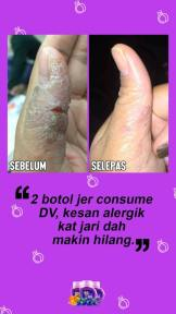 Dianz Vitamin Dianz Beauty Dian Legacy Testimoni 117