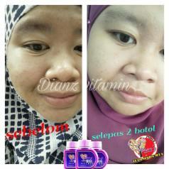 Dianz Vitamin Dianz Beauty Dian Legacy Testimoni 2