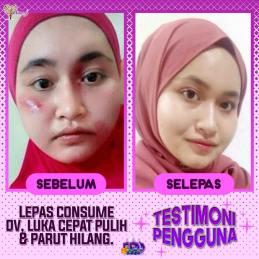Dianz Vitamin Dianz Beauty Dian Legacy Testimoni 98